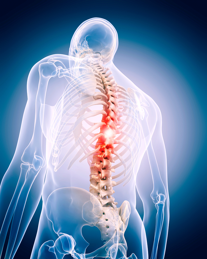 Caregiver in Laguna Woods CA: Spine Surgery Recovery
